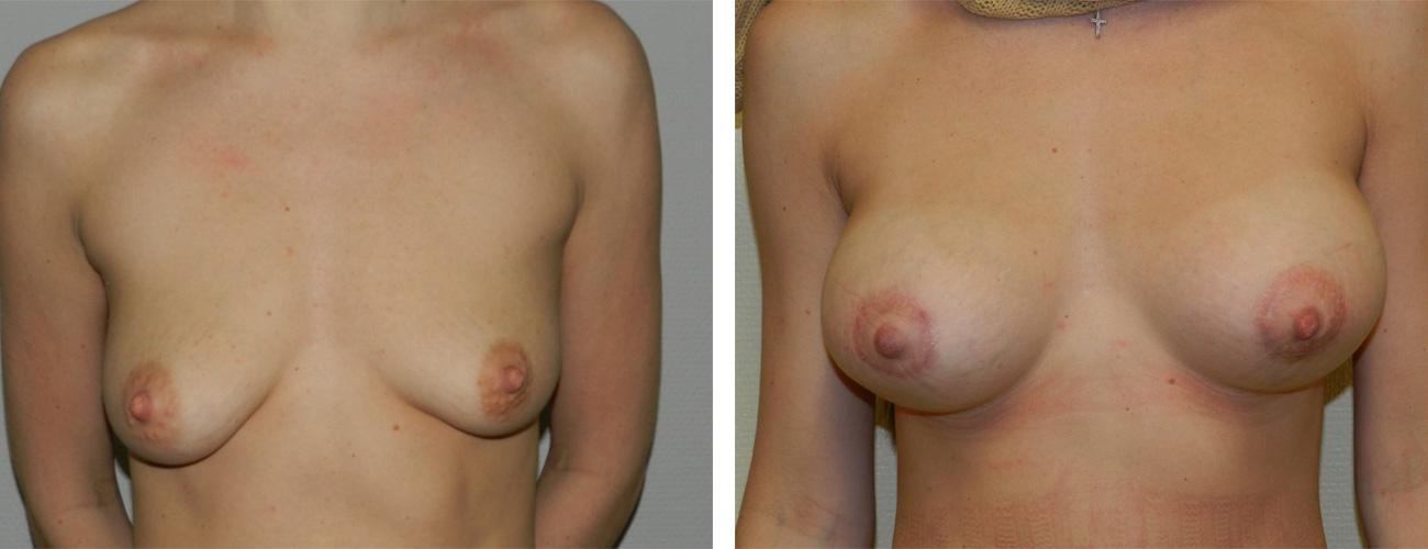 Установка импланта при увеличении груди