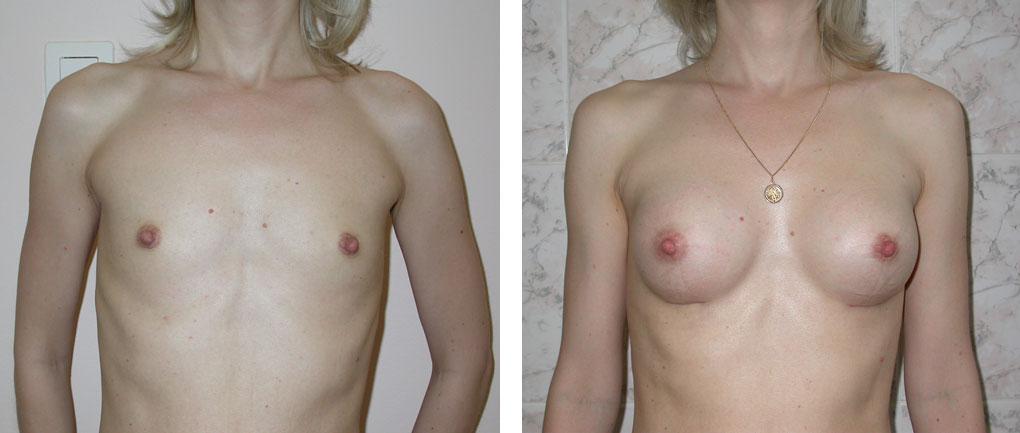 Как увеличивает грудь фенхель